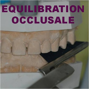 Equilibration occlusale