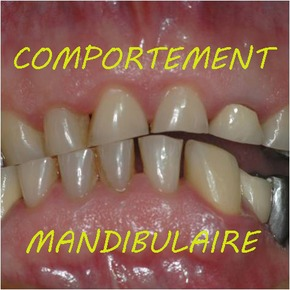Occlusion et comportements mandibulaires